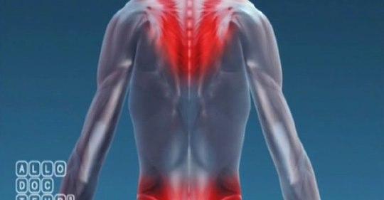Comment prévenir ces douleurs ? Quelles sont les solutions pour améliorer les conditions de travail ?    TMS, la douleur du geste répétitif